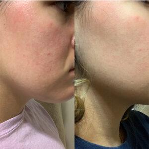 Skin result 1